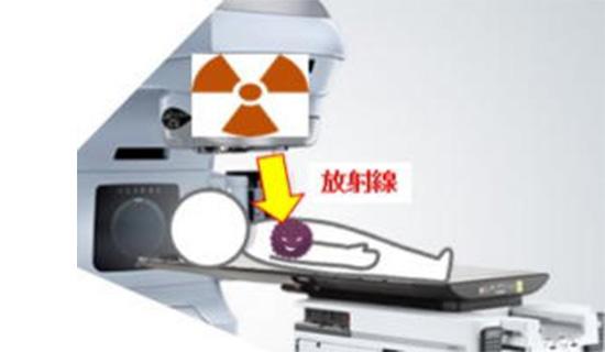 がんの放射線治療法の現状